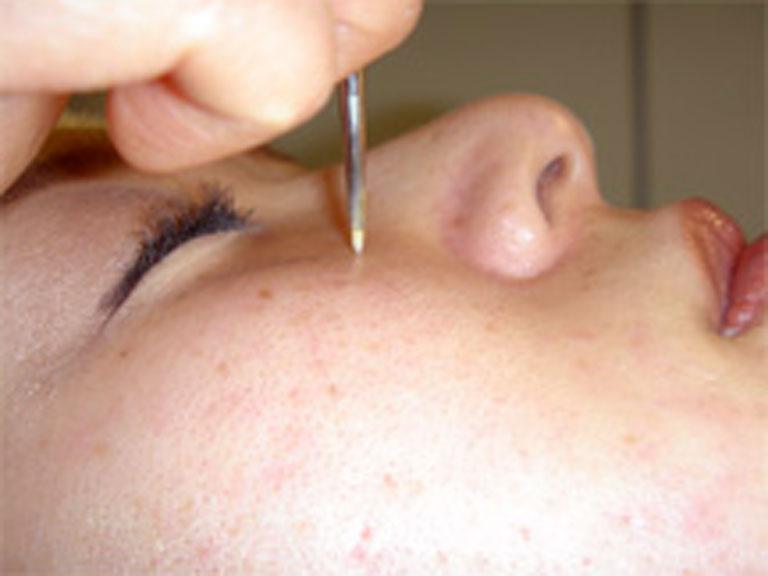 鼻 の 毛穴 なくす 方法