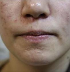 pimple02