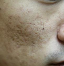 pimple04