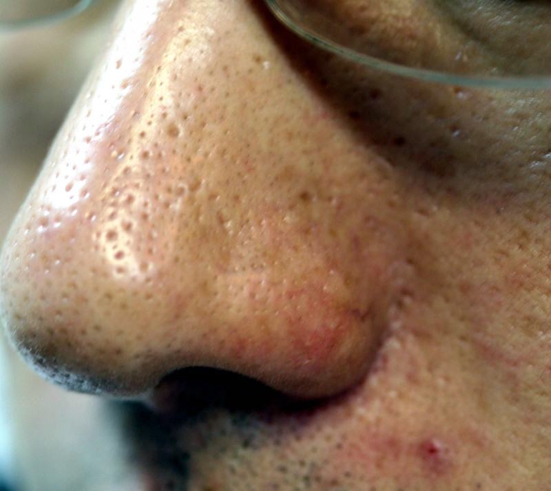 鼻の毛穴の黒ずみ