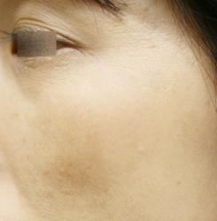 アメブロ肝斑A
