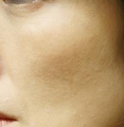 アメブロ肝斑B