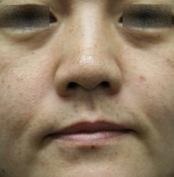 ホクロCO2後鼻下とホホはYAGをH