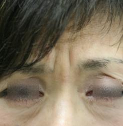 ボトックス眉間と額 (1)H