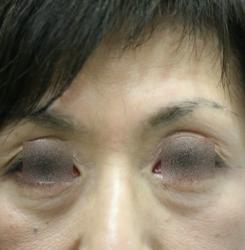 ボトックス眉間と額 (3)H