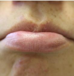 20110124YAG唇のホクロ2