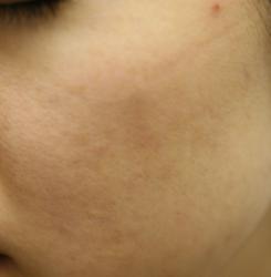 ホクロ・シミ・肝斑2