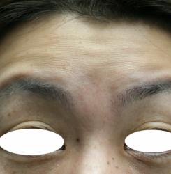 眉間と眉ハネJPG (3)