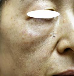 水光注射老化のイボ (4)