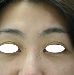眉間と眉ハネJPG (1)