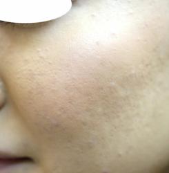 化粧して目立つ、施術後目立たなく (3)